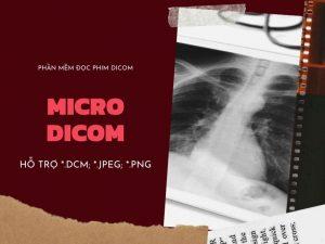 phan-mem-doc-phim-x-quang-ky-thuat-so-dr